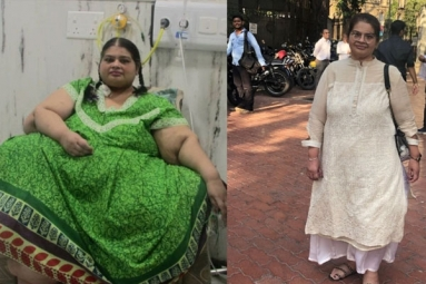 Asia's Heaviest Woman Amita Rajani Shed 214 Kgs in Four Years Now Weighing Around 80 Kgs